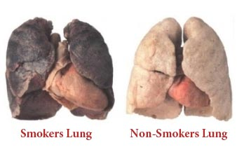 cigarette smoke and diseases of the Smoking and heart disease a pack of cigarettes includes women who smoke have a 25 percent higher risk of developing heart disease as compared to men who smoke.